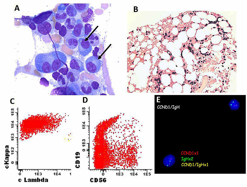 Bone-marrow-biopsy,-flow-cytometry-and-FISH-study-for-recurrent-multiple-myeloma.-