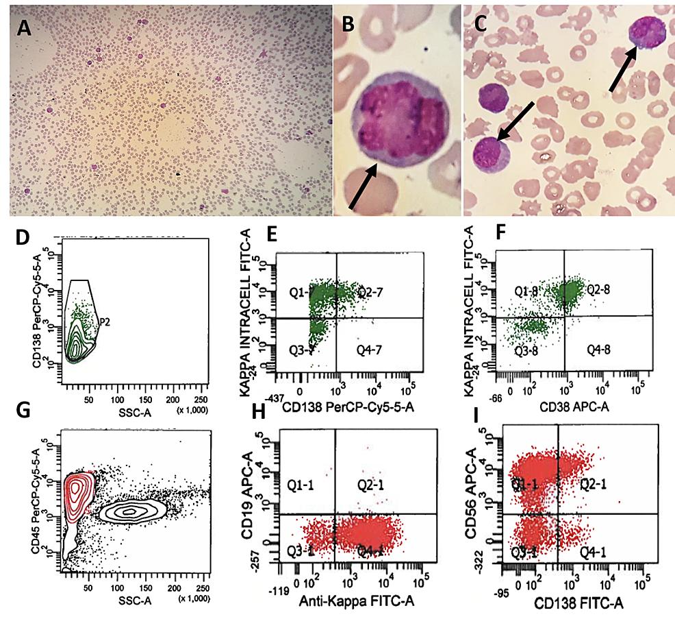 Plasma-cell-leukemia-in-recurrent-multiple-myeloma.-