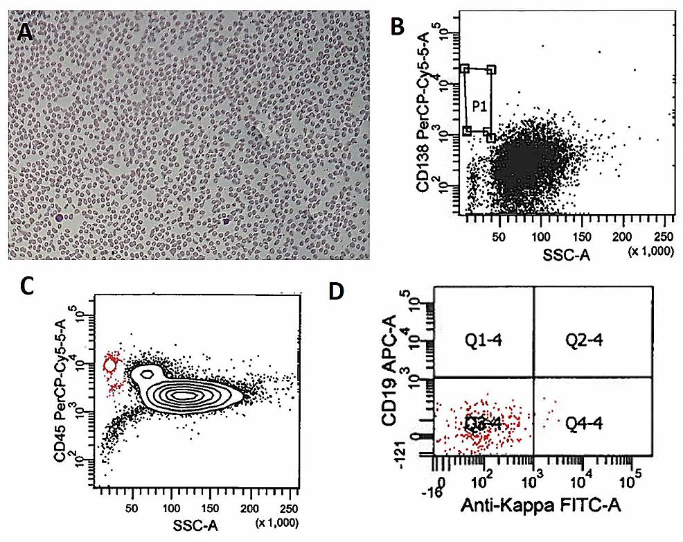 Post-therapy-effect-on-plasma-cell-leukemia.