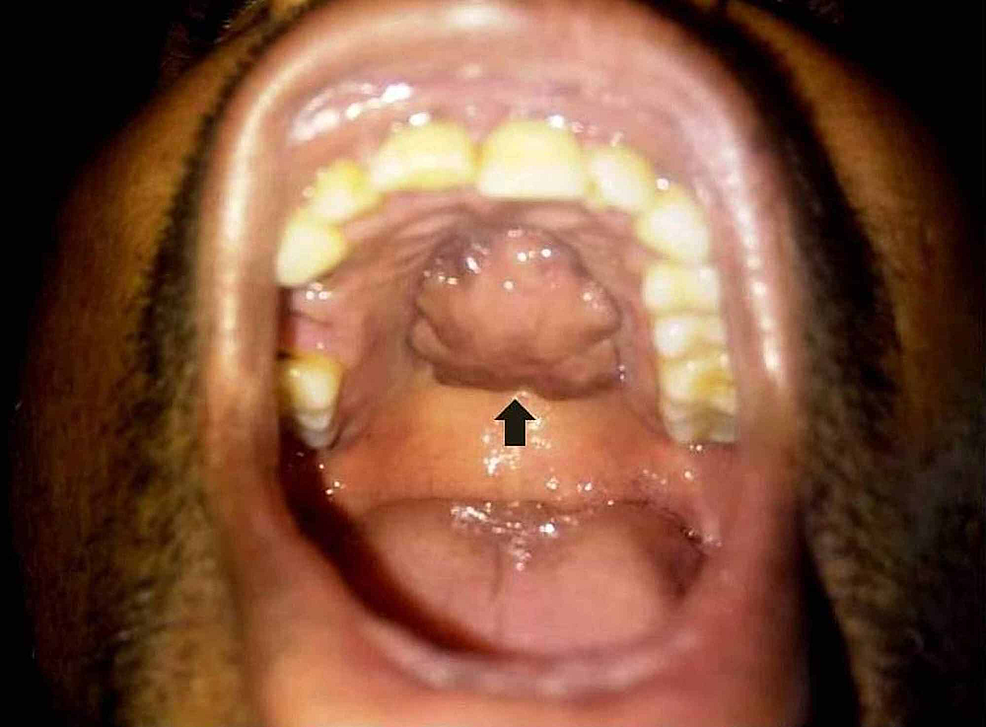 Cureus Osteolipoma An Extremely Rare Hard Palate Tumor