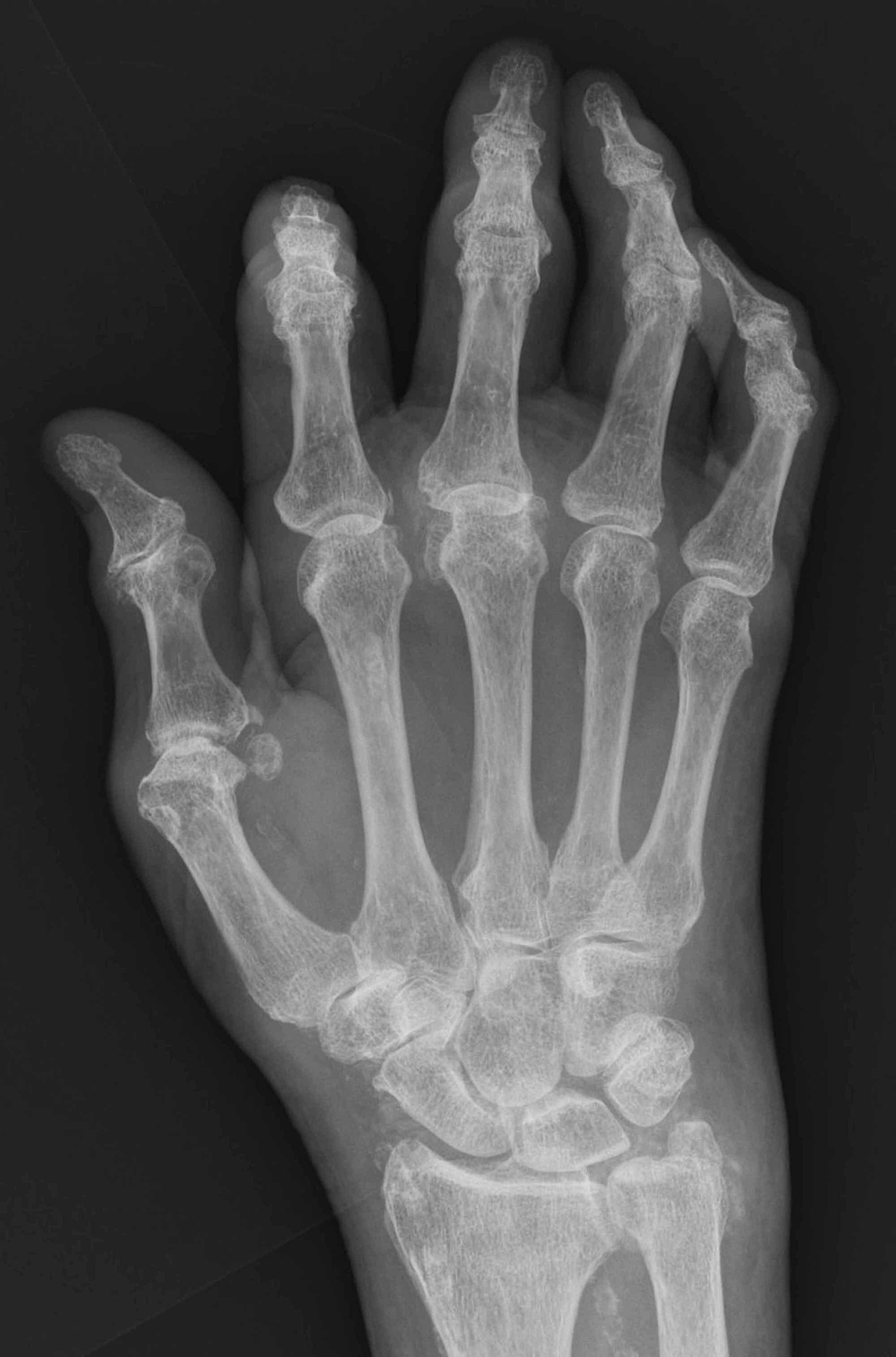 Radiography-of-the-right-hand.-No-bone-involvement-is-observed.