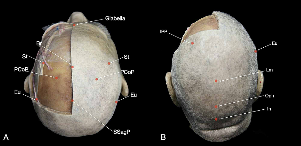 Depiction-of-the-principal-craniometric-points-on-the-skin:-(A)-superior-view-and-(B)-posterior-view-of-the-head.
