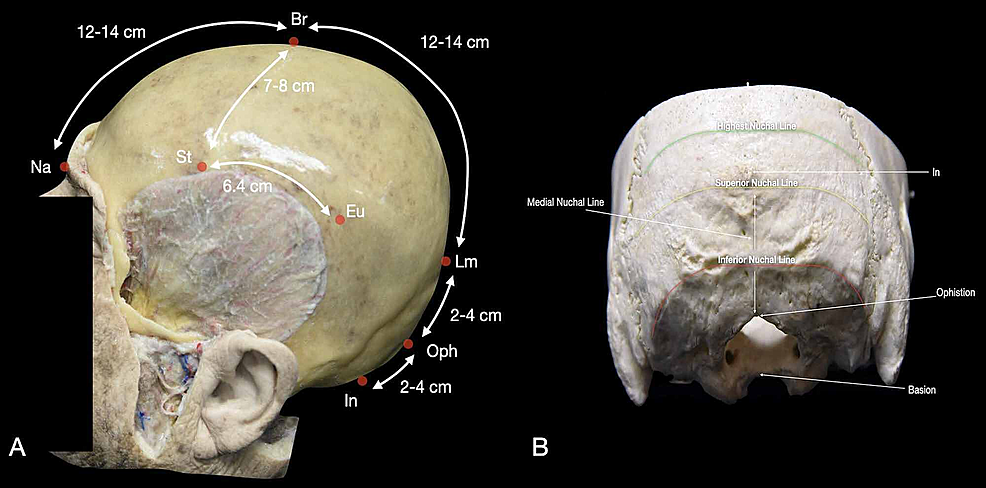 Osteometric-points-and-prominences-of-the-human-skull.-(A)-Lateral-view-of-the-skull-with-the-representation-of-the-mean-distance-of-the-main-craniometric-points;-(B)-posterior-view-of-the-skull-with-an-underline-of-the-principal-points-and-prominences.-