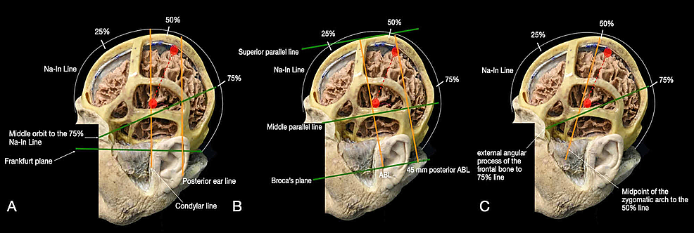 Representation-of-the-main-craniometric-methods-used-to-identify-the-central-sulcus:-(A)-Taylor-Haughton-method,-(B)-Broca's-method,-and-(C)-Rhoton's-method.