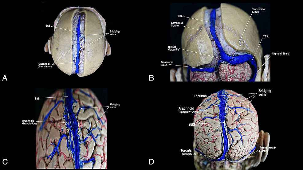 Overview-of-the-major-dural-sinuses-and-veins-of-the-brain.-(A)-Superior-view-of-the-head-after-removal-of-the-superior-sagittal-suture-and-visualization-of-the-SSS;-(B)-posterior-view-of-the-head-after-removal-along-the-superior-sagittal-suture-and-opening-of-the-posterior-fossa,-visualization-of-the-SSS,-torcula-Herophili,-transverse-sinus,-and-sigmoid-sinus;-(C)-visualization-of-the-anterior-portion-of-the-brain-underlying-the-venous-structures-(SSS,-arachnoid-granulations,-and-bridging-veins);-(D)-visualization-of-the-posterior-portion-of-the-brain-underlying-the-venous-structures-(SSS,-arachnoid-granulations,-bridging-veins,-torcula-Herophili,-transverse-sinus).