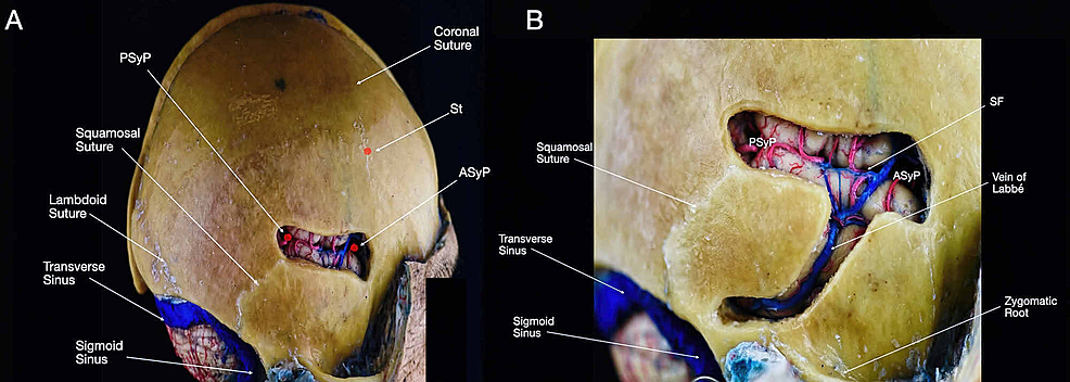Overview-of-the-SF-and-the-vein-of-Labbé.-(A)-Lateral-view-of-the-head-with-exposure-of-the-SF-after-selective-drilling-was-performed-over-the-central-portion-of-the-squamosal-suture;-(B)-lateral-view-of-the-head-with-focus-bone-removal-above-the-SF-and-the-course-of-the-vein-of-Labbé.