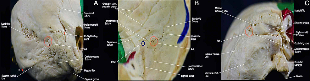 Overview-of-the-Asterion-and-the-transverse-sigmoid-sinus-junction.-(A)-Postero-lateral-view-of-the-skull;-(B)-interior-view-of-the-postero-lateral-aspect-of-the-skull;-(C)-inferior-view-of-the-postero-lateral-aspect-of-the-skull.-