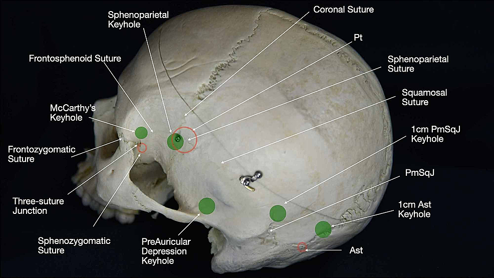 Representation-of-the-strategic-burr-hole-position-(green-spheres)-on-the-lateral-aspect-of-the-skull.