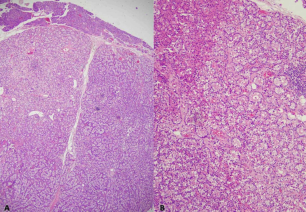 (A)-Section-shows-a-tumor-with-well-circumscribed-borders.-It-is-hypercellular-and-devoid-of-stromal-adipose-cells.-A-thin-rim-of-normal-residual-parathyroid-tissue-is-seen-in-the-upper-field-(H&E,-x40).-(B)-The-tumor-shows-a-follicular-pattern,-composed-predominantly-of-chief-cells-with-focal-collection-of-oxyphil-cells-in-the-left-upper-field-(H&E,-x100).