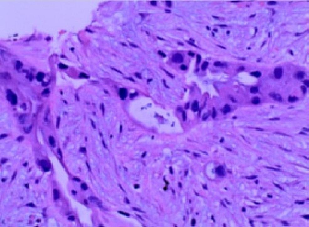 Histopathology-of-the-pancreatic-biopsy