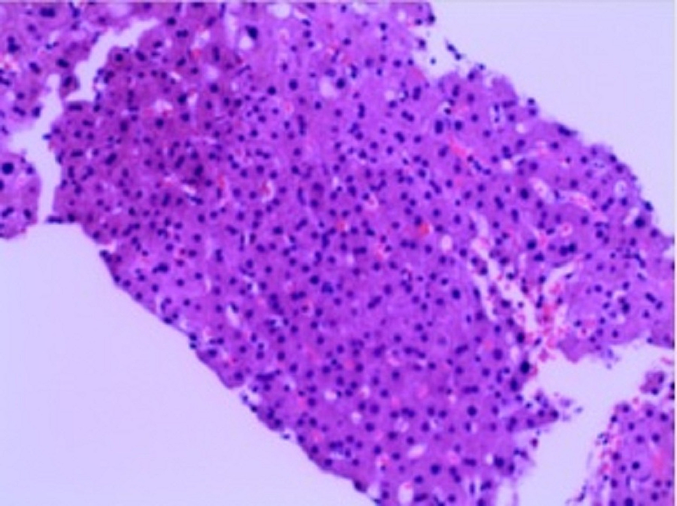 Histopathology-of-the-liver