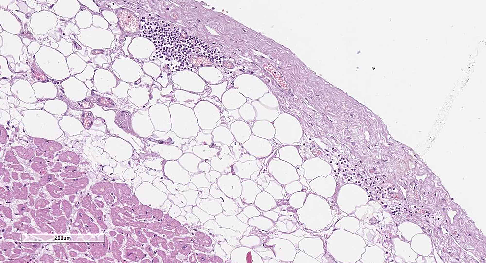 Epicardial-histology