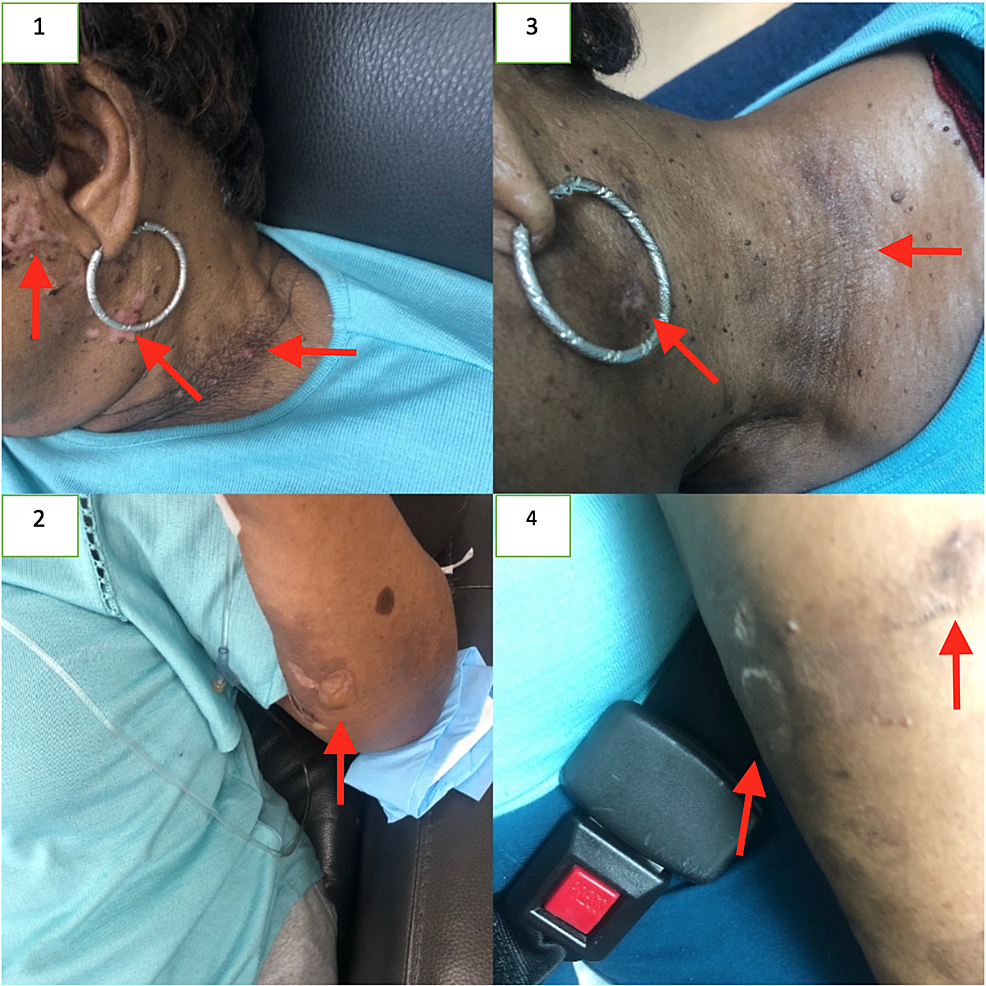 The-pemphigus-lesions-of-the-neck-and-forearm-before-(1-&-2)-and-after-(3-&-4)-treatment.-Arrows-point-to-lesions-of-interest.