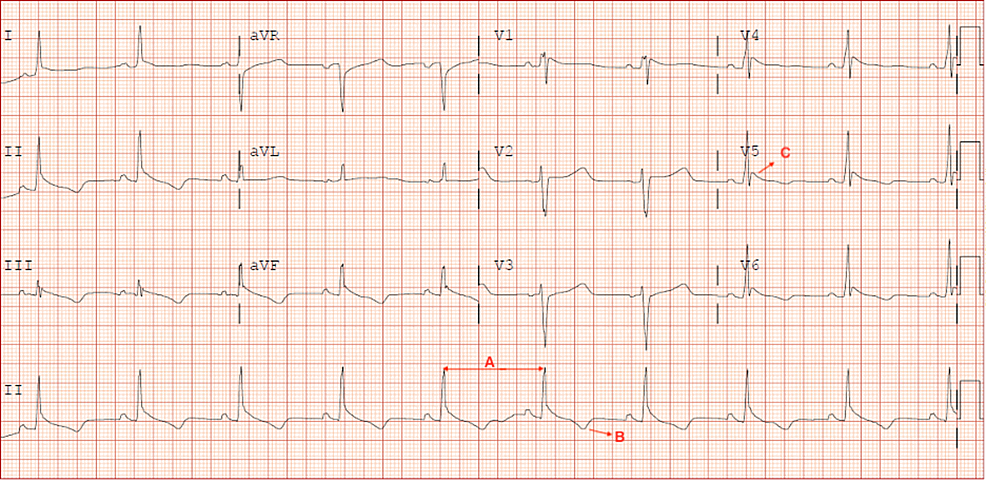 12-Lead-EKG.