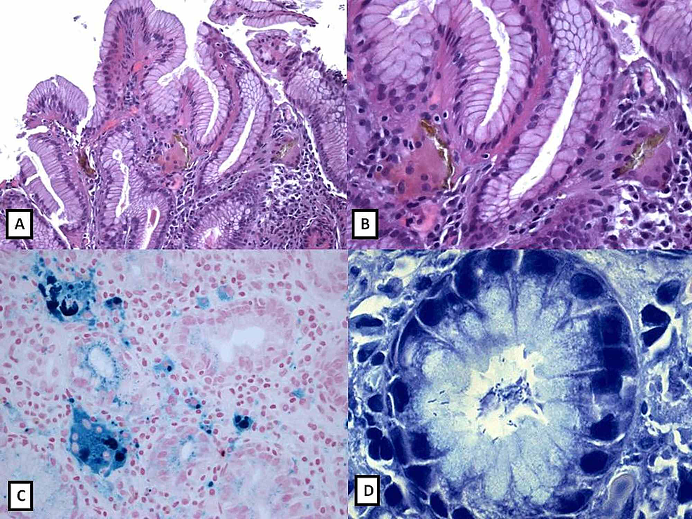 Histology-of-iron-overload-in-gastric-mucosa-of-patient-number-one-as-mentioned-in-Table-1