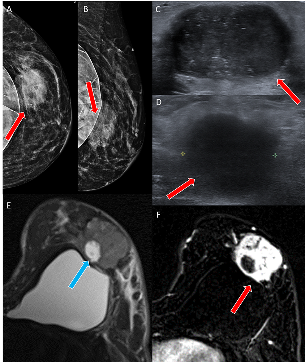 Case-2-imaging-findings