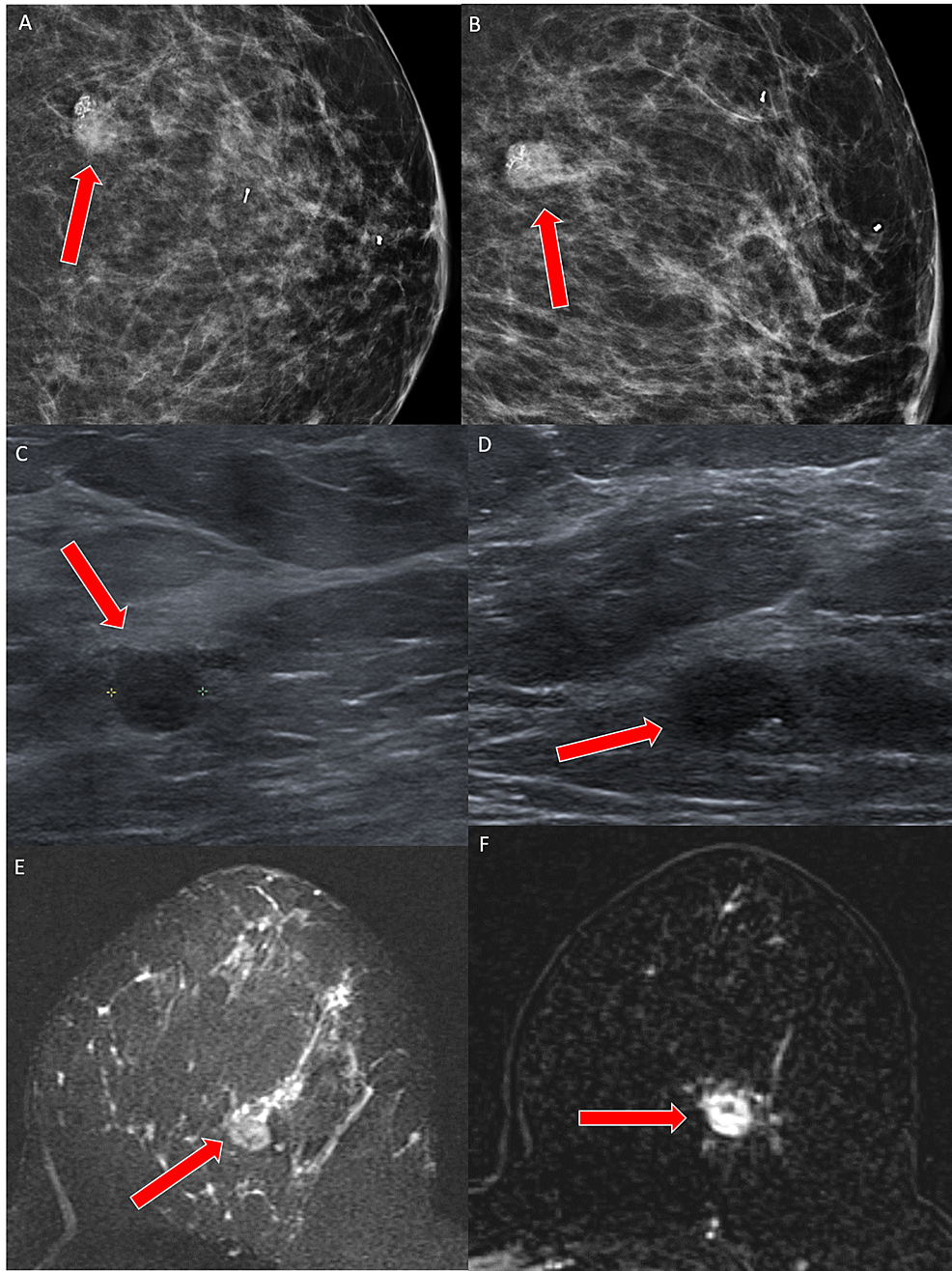 Case-3-imaging-findings