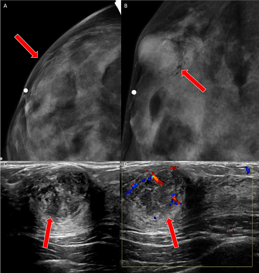 Case-4-imaging-findings
