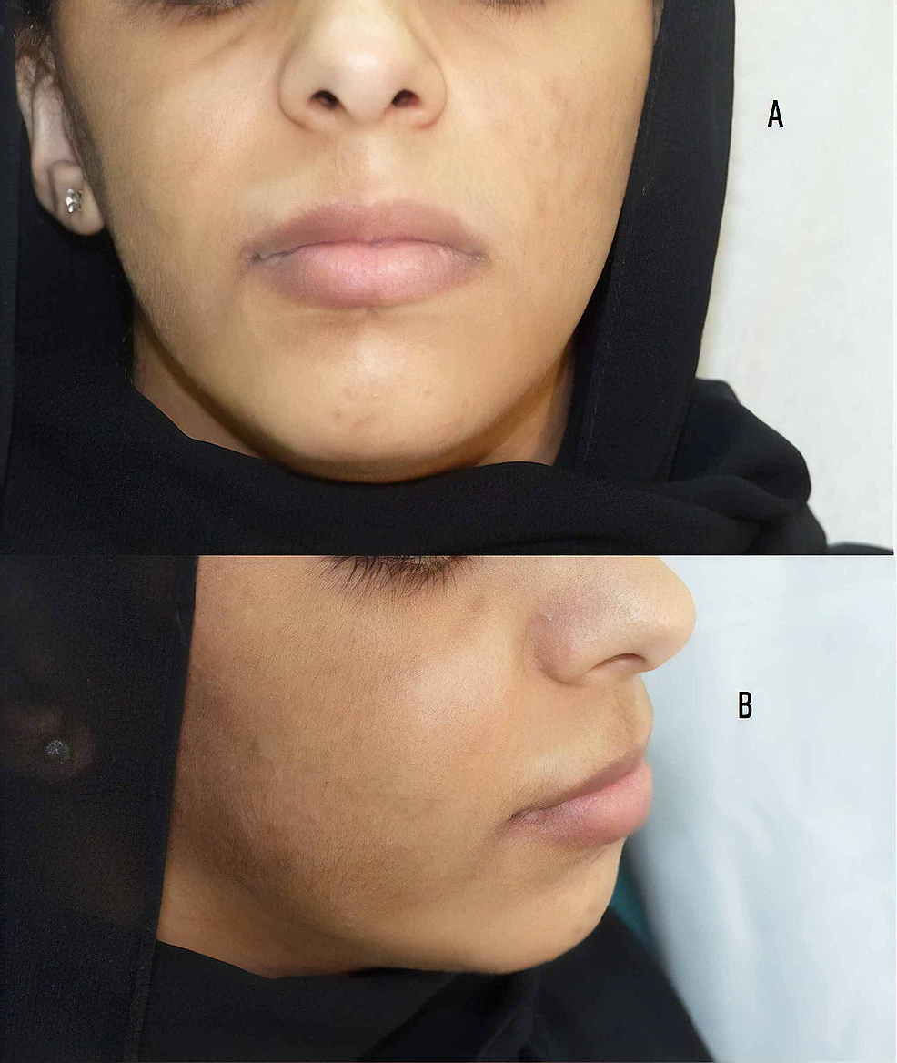 (A)-Hyperpigmented-hairy-patch-over-right-cheek-and-(B)-slight-lip-hypertrophy-over-the-same-side.