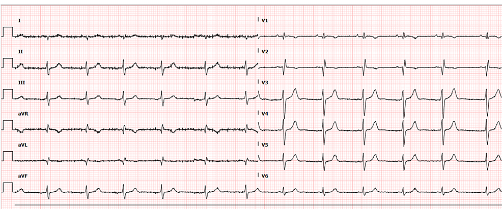 Initial-electrocardiogram-revealing-an-ectopic-atrial-rhythm,-right-axis-deviation,-right-ventricular-hypertrophy-and-an-incomplete-right-bundle-branch-block-pattern.