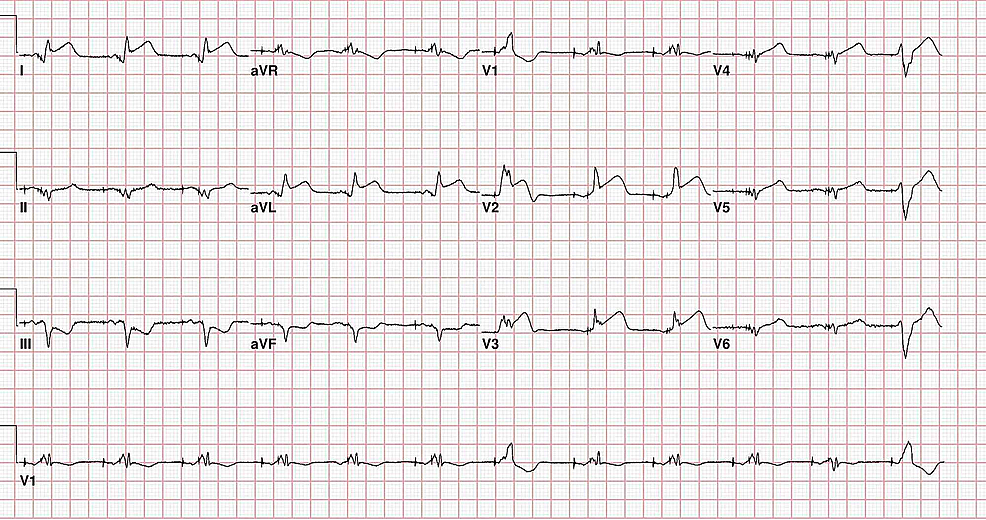 Presenting-EKG-revealing-ventricular-paced-rhythm-with-ST-elevations-in-the-anterior-and-lateral-leads-with-inferior-depression.