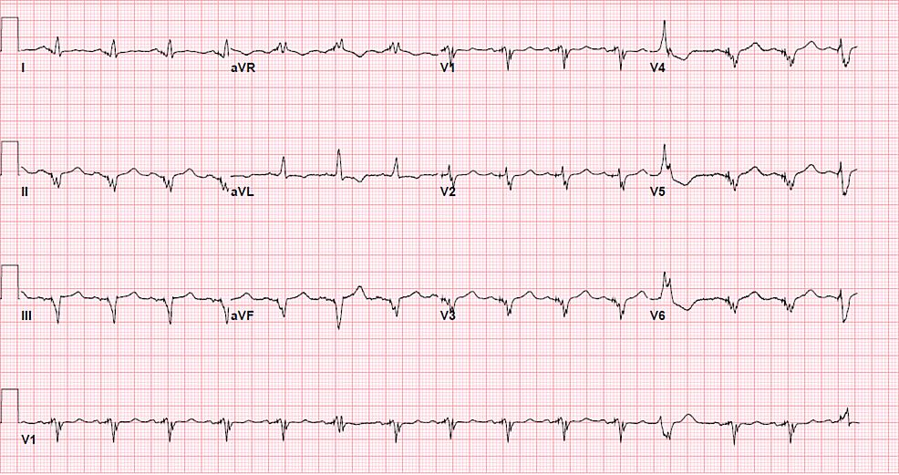 Baseline-EKG-several-months-prior-to-presentation-for-STEMI.