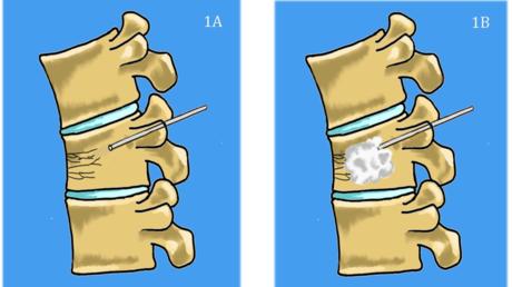 Content card 2f293f90f96e11e694800d1bb6867708 vertebroplasty figure 1 cropped v1 pme