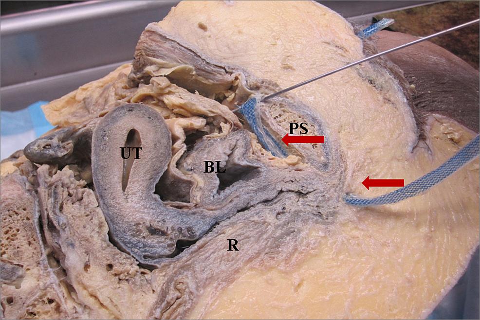 Hemisected-cadaver-pelvis-demonstrating-correct-trocar-placement
