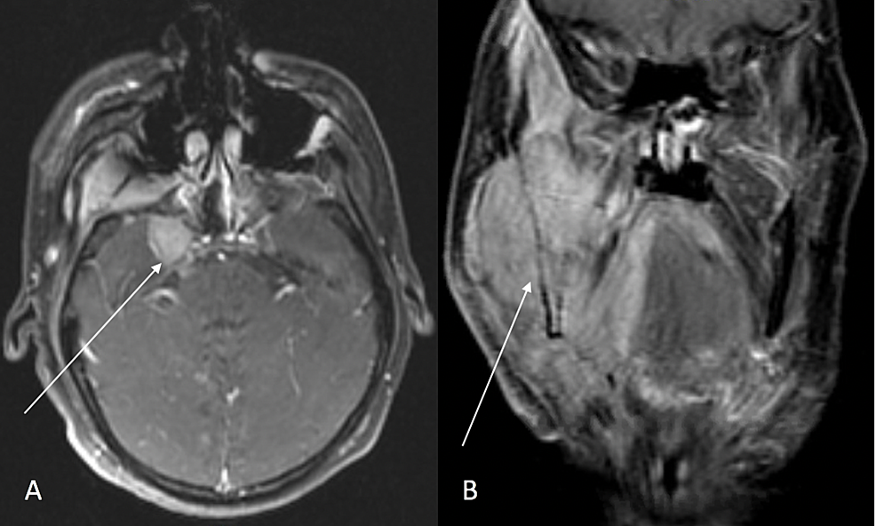 MRI-brain-and-neck-with-contrast-at-presentation