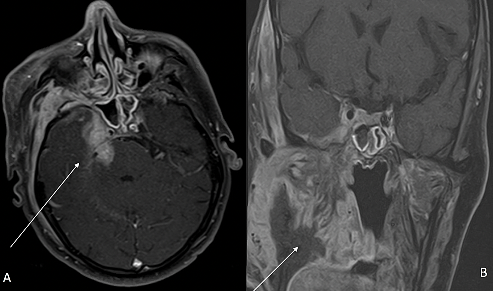 MRI-brain-and-neck-with-contrast-four-months-after-pazopanib-therapy