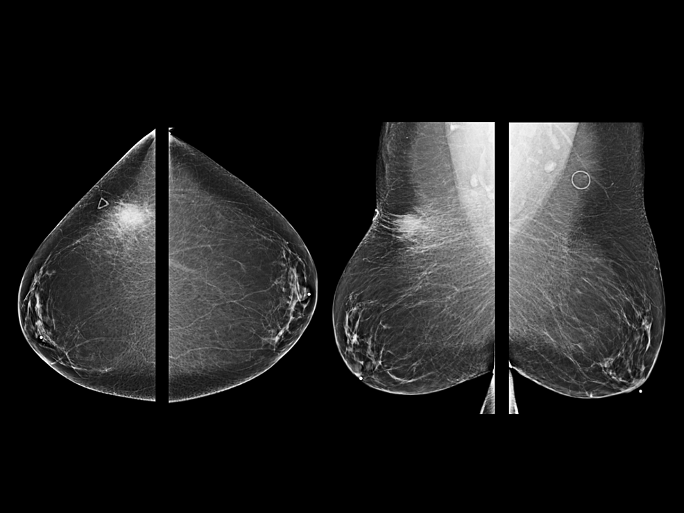 Full-field-digital-diagnostic-mammogram-demonstrates-focal-asymmetry-in-the-upper-outer-quadrant-of-the-right-breast-corresponding-to-the-palpable-marker.
