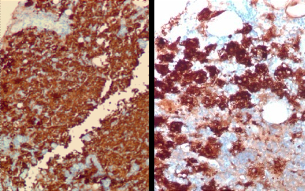 Breast-biopsy-demonstrating-sheets-of-medium-to-large-histiocytic-cells-staining-diffusely-and-strongly-with-S100-protein-(100X,-200X).