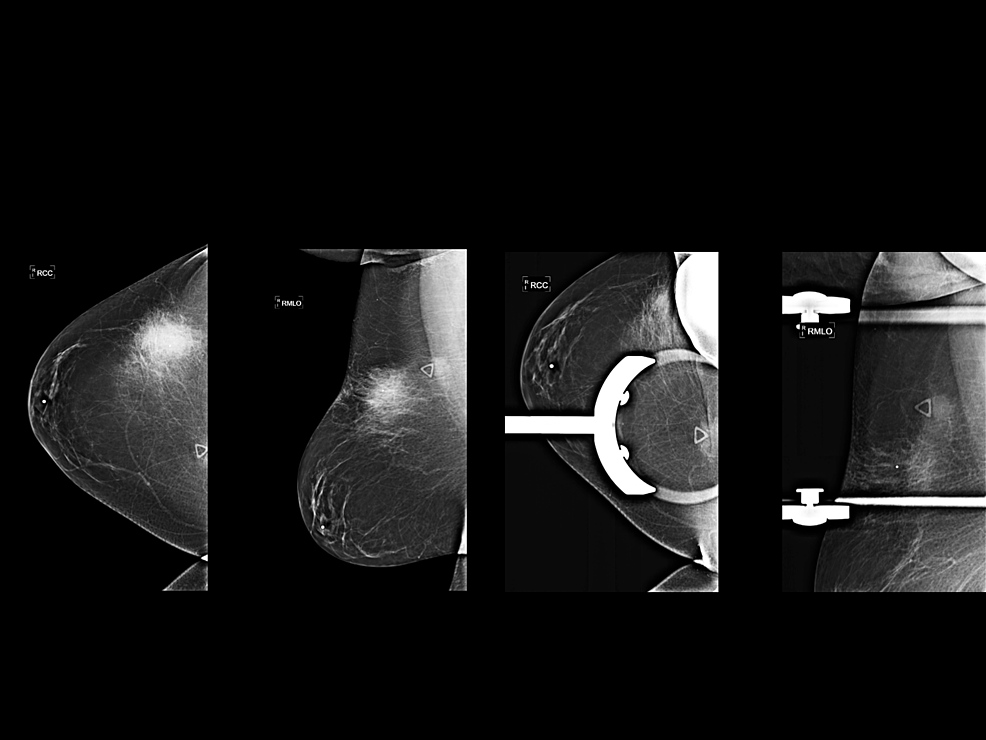 Full-field-digital-diagnostic-mammogram-and-spot-compression-views-demonstrate-a-focal-asymmetry-without-calcifications.