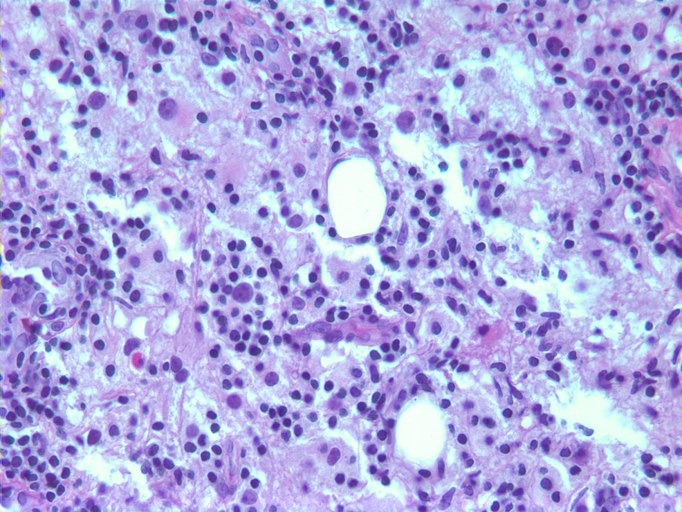 Breast-tissue-totally-replaced-by-sheets-of-Rosai-Dorfman-histiocytes,-small-lymphocytes,-and-scattered-plasma-cells.-Many-histiocytes-show-the-emperipolesis-of-lymphocytes-(H&E-stain,-400X).