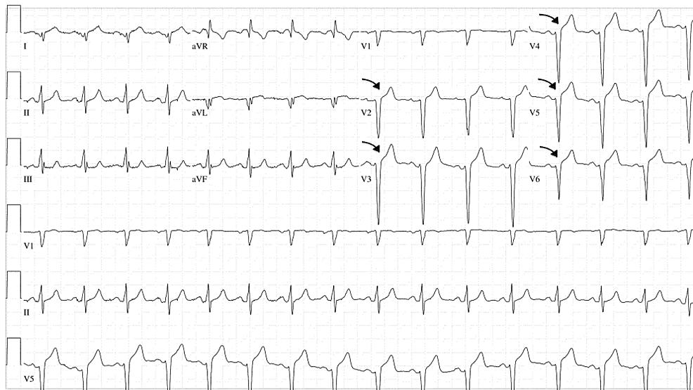 Electrocardiography-(EKG)