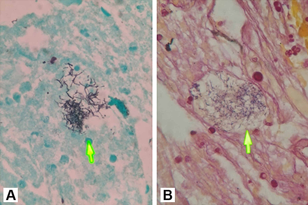 (A)-Grocott-Gomori's-stain-and-(B)-Brown-Hopps-(B)-stain-showing-filamentous-bacteria-(arrows)