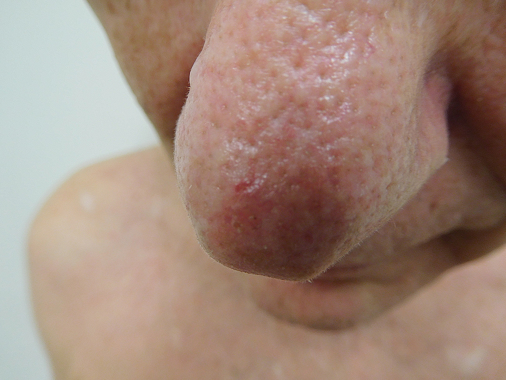 Cureus | Red Dot Basal Cell Carcinoma: Report of Cases and