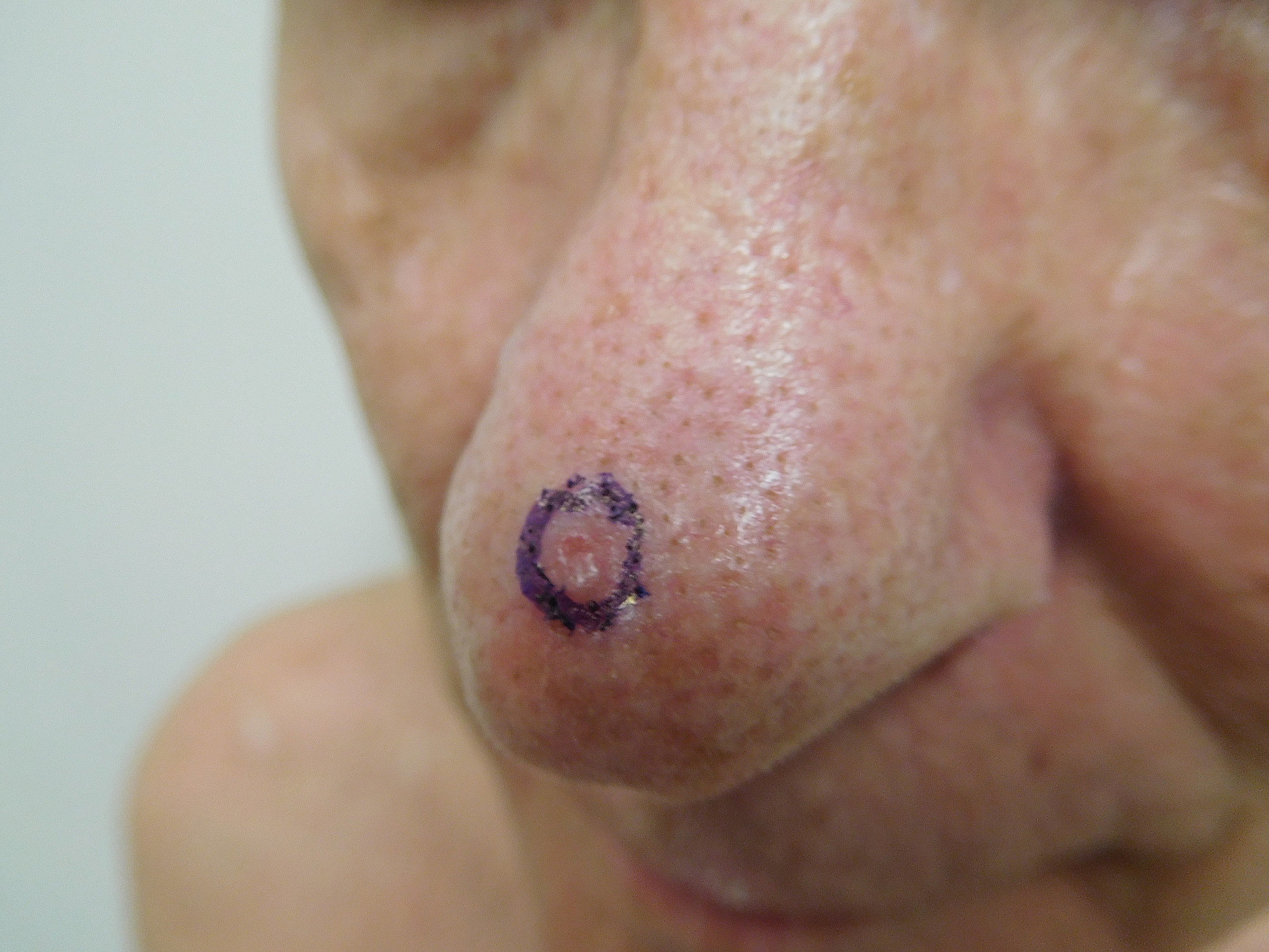 cureus | red dot basal cell carcinoma: report of cases and review, Sphenoid