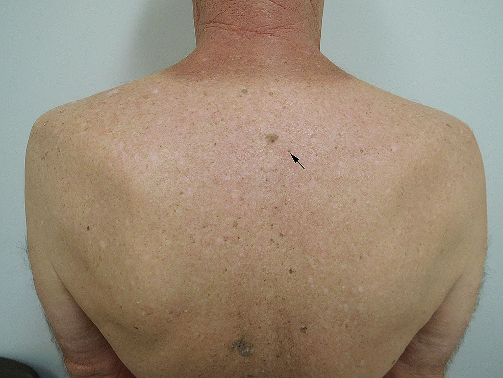 Medical abbreviation nt pertaining to chest - Figure 3 Clinical Presentation Of A Pigmented Basal Cell Carcinoma On The Back Of A 70 Year Old Male