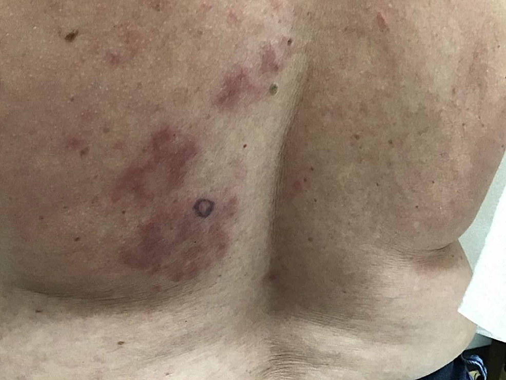 Erythematous,-evanescent,-edematous-plaques-of-the-left-inferior-medial-back.--Purple-circle-marked-with-surgical-pen-indicated-the-area-for-4-mm-punch-biopsy.