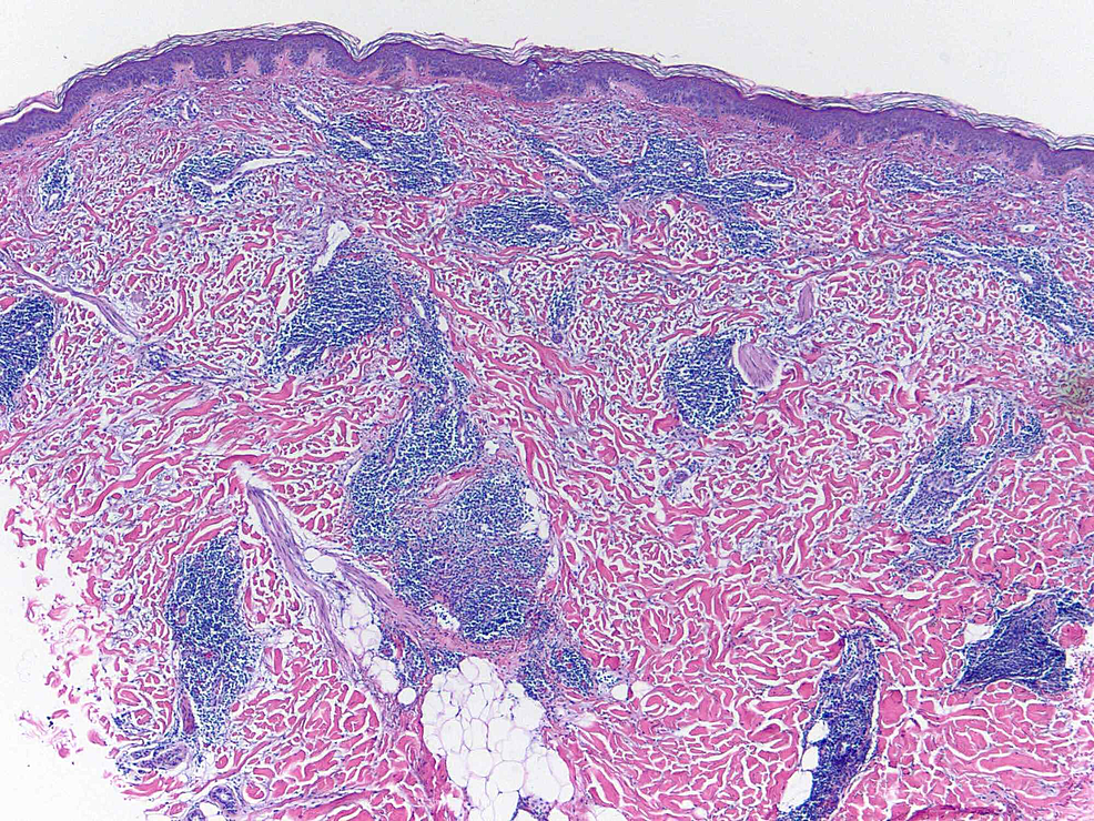 Hematoxylin-and-eosin-stain-of-4-mm-punch-biopsy-(4x-magnification)-of-lesion-demonstrating-superficial-and-deep-perivascular-and-periadnexal-lymphocytic-infiltrate-with-dermal-mucin-deposition-and-edema.
