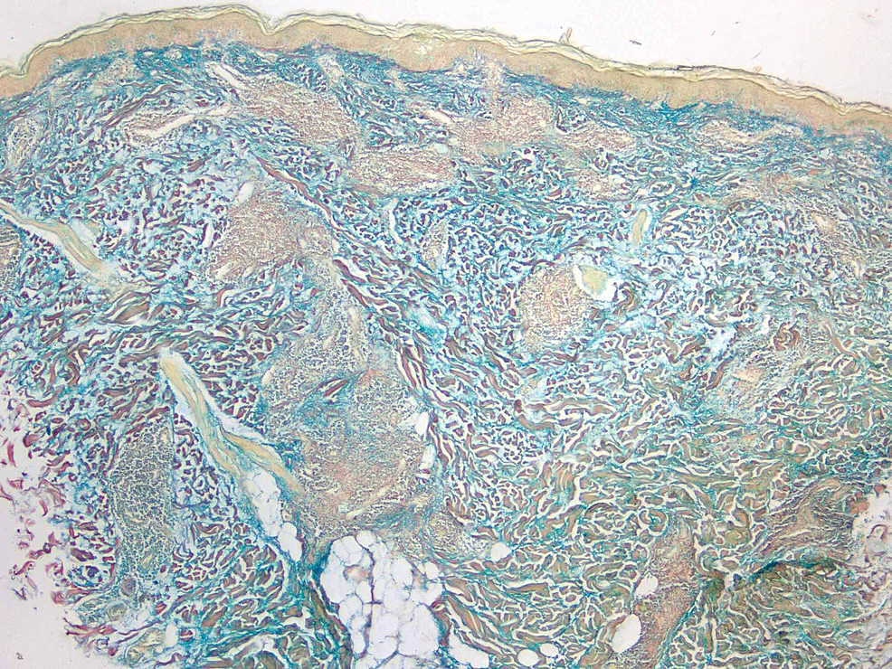 Colloidal-iron-stain-of-4-mm-punch-biopsy-(4x-magnification)-of-lesion-demonstrating-excessive-deposition-of-dermal-mucin.