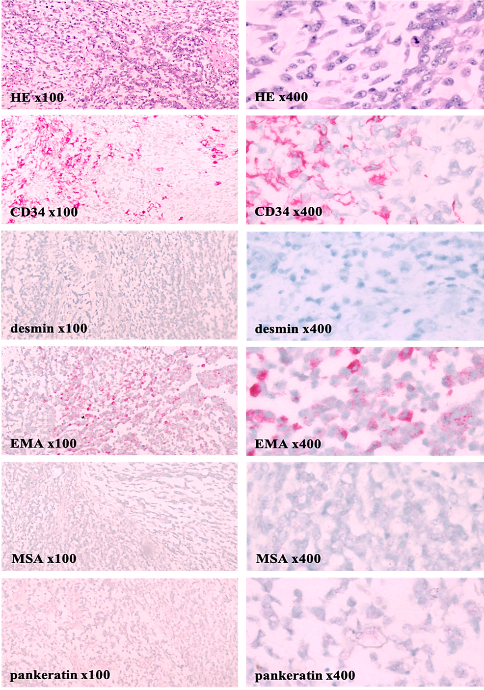 Left-paratesticular-tumor-pathology-demonstrates-a-sarcoma