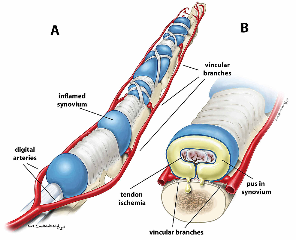 -A)-Anatomy-of-flexor-tendon-sheath-with-swollen-sheath-due-to-pyogenic-flexor-tenosynovitis.-B)-Cross-section-of-flexor-tendon-sheath-demonstrating-pus-in-the-sheath-obstructing-blood-flow-from-the-vincular-branches.