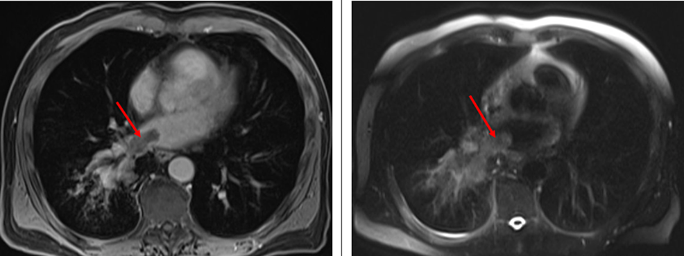 Cardiac-MRI,-with-and-without-intravenous-gadolinium-demonstrates-a-tumor-thrombus-involving-the-right-inferior-pulmonary-vein-and-extending-into-the-left-atrium-(red-arrow).