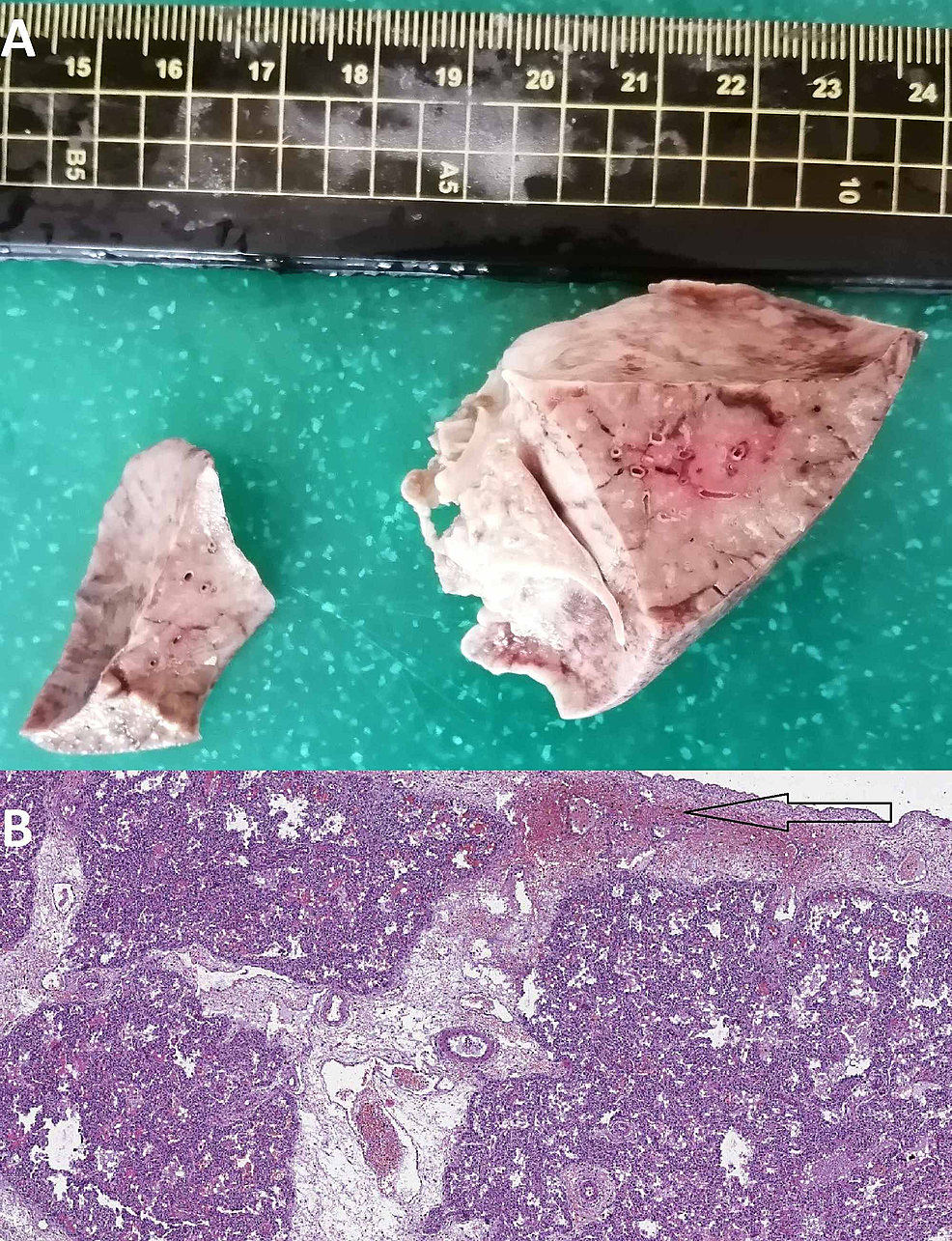 Gross-and-histological-findings-in-the-lung