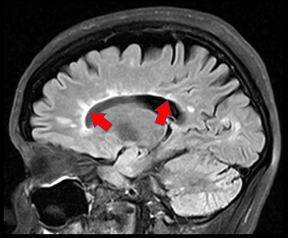 Sagittal-view-of-the-patient's-brain-on-MRI-through-the-corpus-callosum-demonstrating-multiple-pericallosal-finger-like-projections-of-T2-hyperintensity-representing-demyelinating-plaques-known-as-Dawson-fingers-(red-arrows).