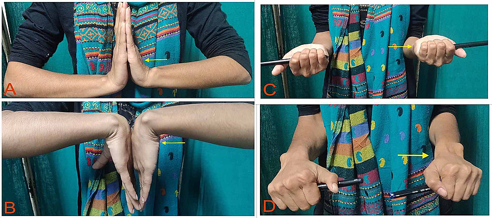 Range-of-motion-of-the-wrist-joint.