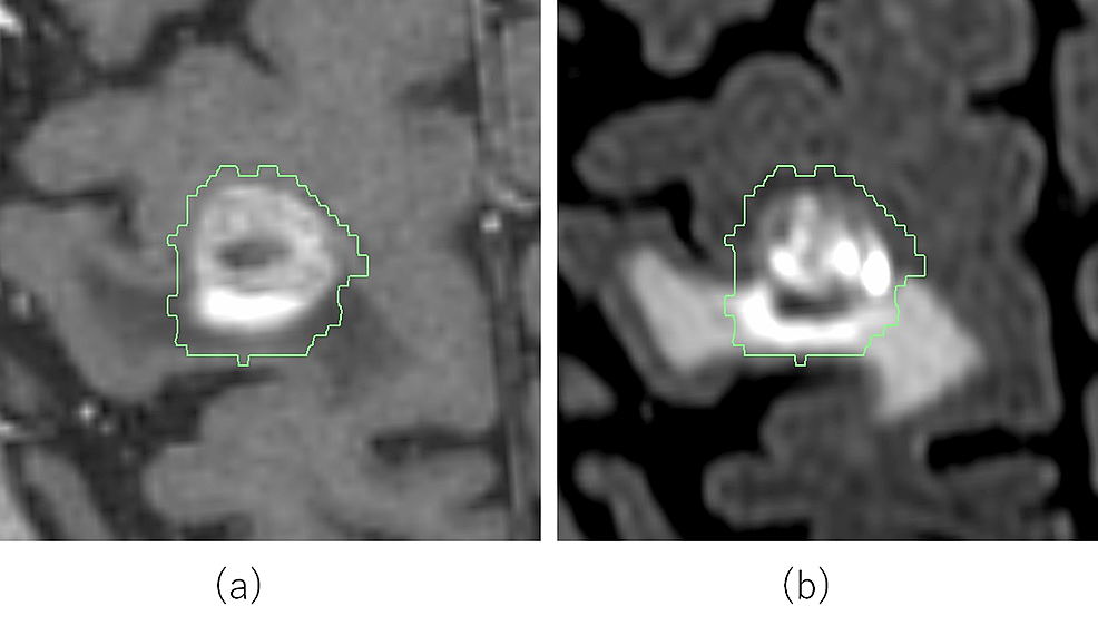 Delineation-of-gross-tumor-volume-by-jointly-referring-to-(a)-thin-slice-contrast-enhanced-3D-T1-weighted-(CE-3D-T1W)-and-(b)-thin-slice-contrast-enhanced-3D-fluid-attenuated-inversion-recovery-(CE-3D-FLAIR)-magnetic-resonance-images.