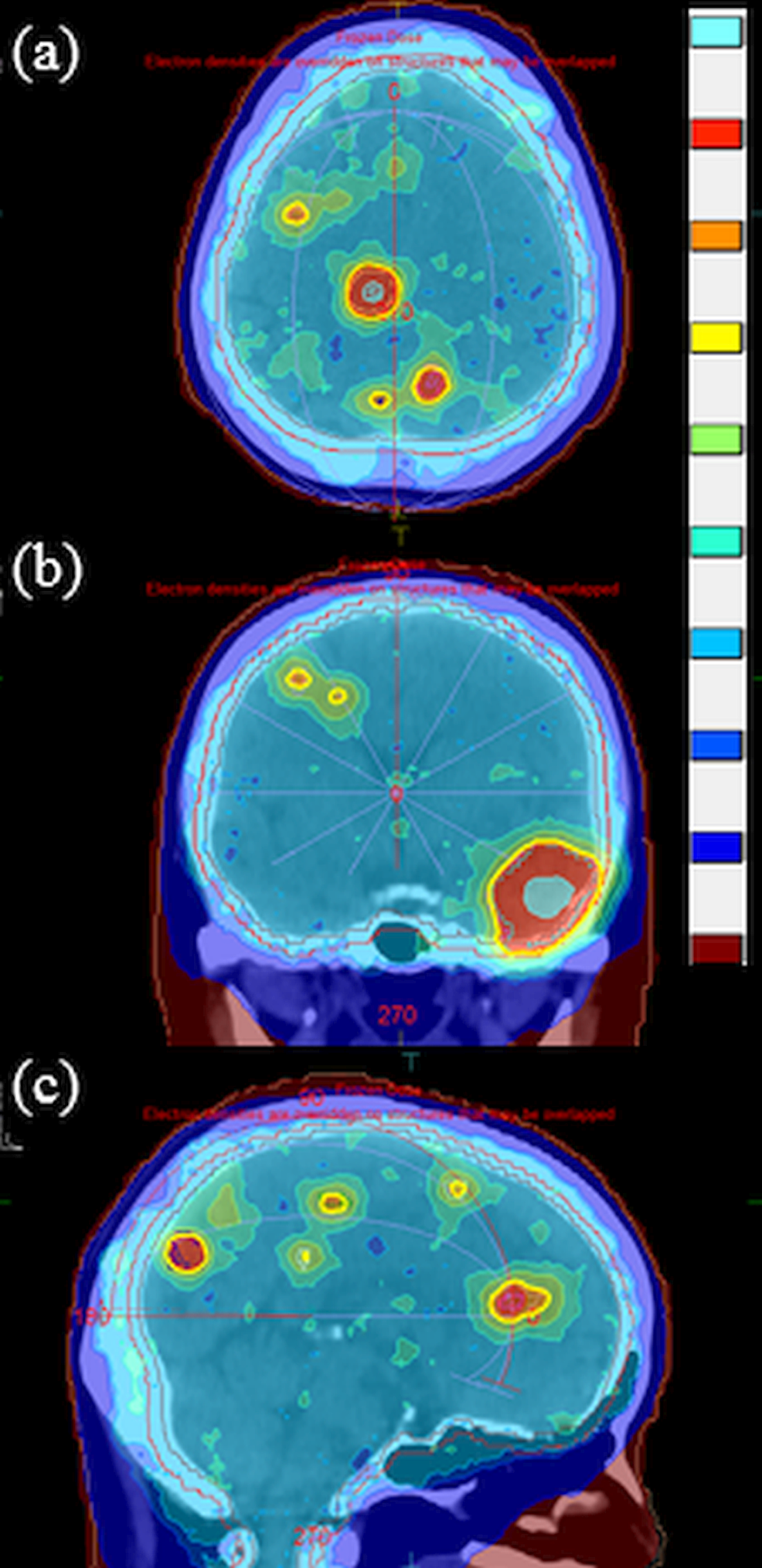 Dose-distributions-on-(a)-an-axial-plane,-(b)-a-coronal-plane,-and-(c)-a-sagittal-plane-for-the-16-brain-metastases.-The-color-bar-(from-top-to-bottom)-shows-dose-thresholds-of-80,-57,-54,-52.5,-46,-41.25,-37.5,-35.63,-20,-and-6-Gy.